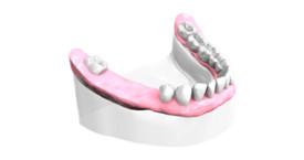 Remplacer plusieurs dents absentes Caen