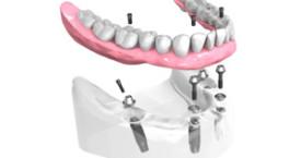 Remplacer toutes dents absentes Caen