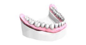 Remplacer toutes dents absentes
