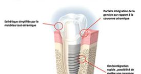 Chirurgie pré-implantaire Caen