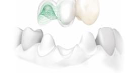 La couronne dentaire Caen