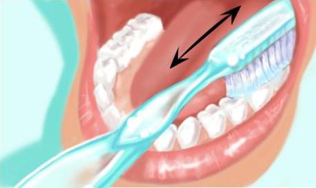 Technique de brossage des dents 1